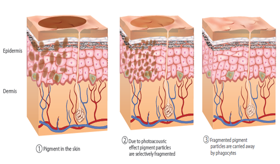 The_Q_switched_Epidermis_image